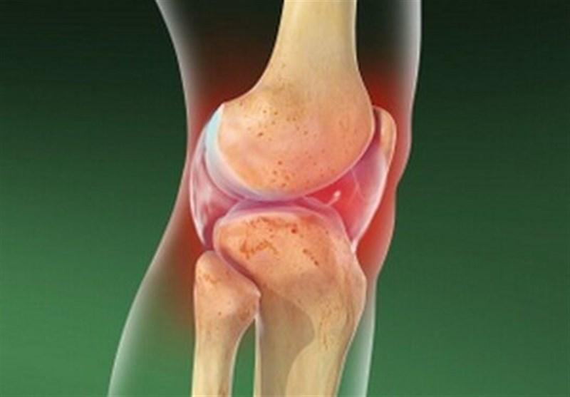 آرتریت سپتیک چیست و چه علائمی دارد؟