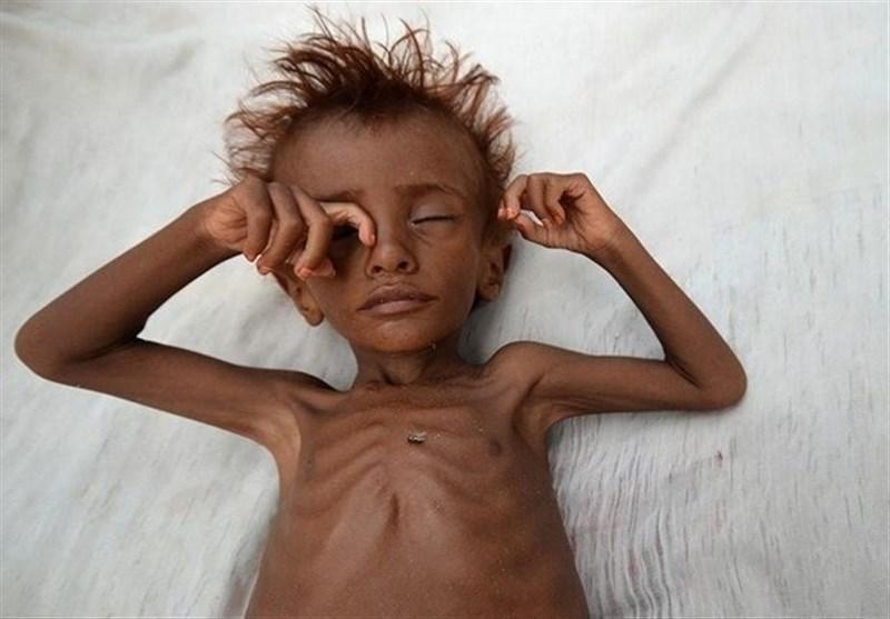 صندوق نجات بچه ها خواستار توقف جنگ فاجعه بار در یمن شد