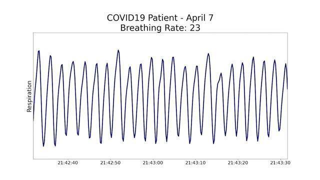 دستگاهی برای ادامه درمان بیماران مبتلا به کووید- 19 در خانه